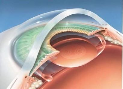 ICL手术中的人工晶体能用多久