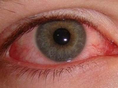 警惕!葡萄膜炎和红眼病不一样!