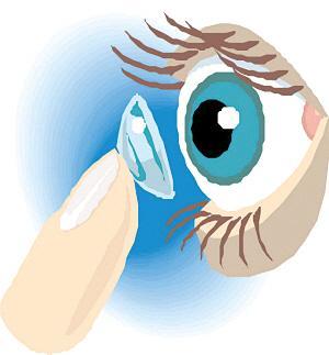 角膜塑形镜治疗散光有用吗?