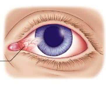 自体结膜瓣移植术是什么?