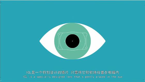 你关心的 | 近视+散光,近视手术能同时矫正吗?