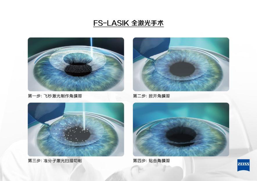 飞秒激光近视手术的优势在何处?