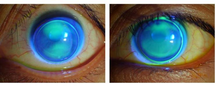 RGP硬性隐形眼镜能治疗圆锥角膜吗?