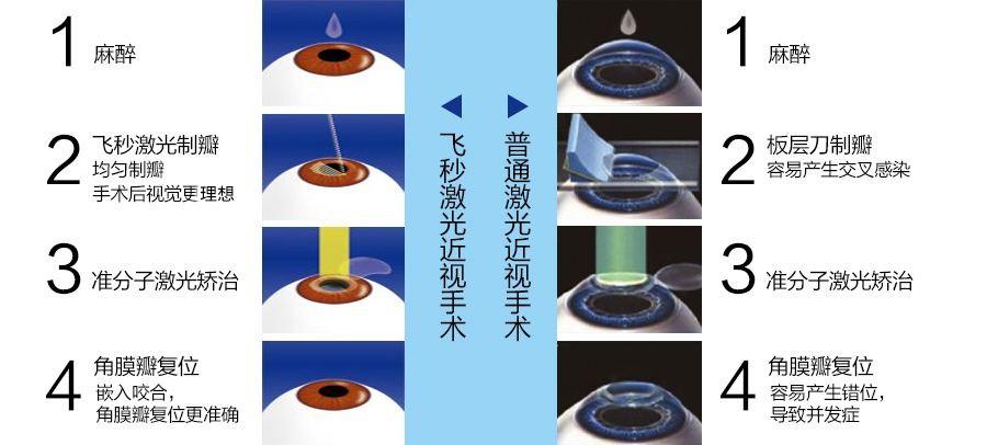 激光手术治疗近视、散光好不好?术后效果怎么样?