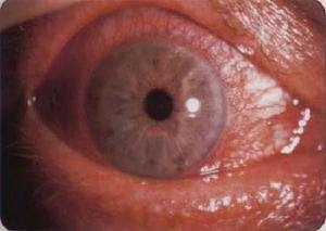 葡萄膜炎有什么症状?该如何治疗?