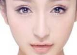 以下双眼皮类型,你属于哪一钟?