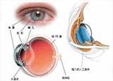 白内障手术中 如何选择人工晶体?