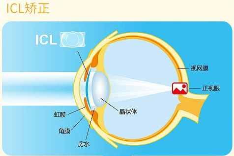 ICL晶体植入丨600度以上近视者的福音