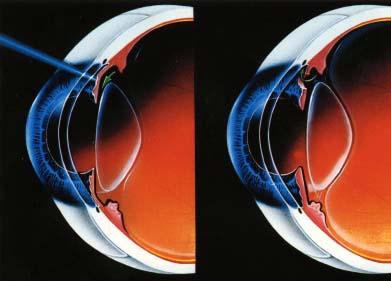 激光虹膜打孔术