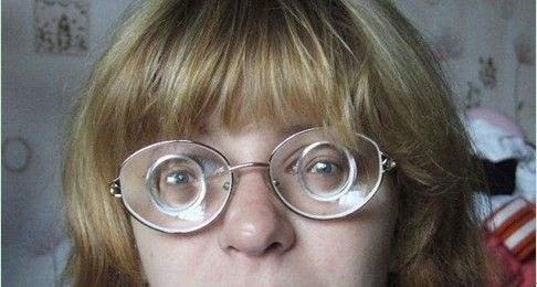 ICL晶体植入术 告别高度近视