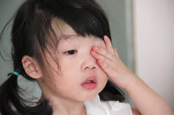 儿童散光有哪些症状?