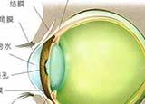 七个群体需要警惕青光眼